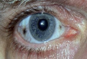 blackeyespot